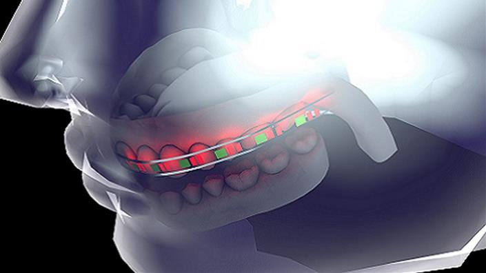 A concept image shows the 'smart' orthodontic brace (Credit: KAUST)